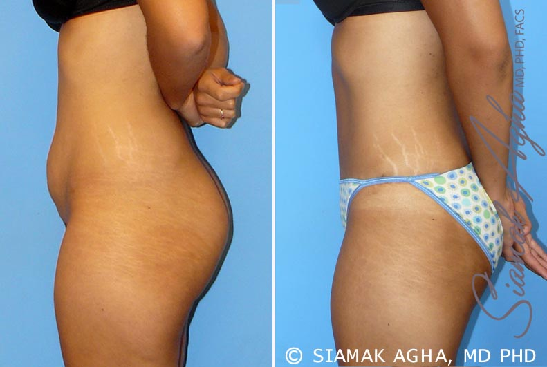 Orange County Newport Beach Tummy Tuck 11 Left View