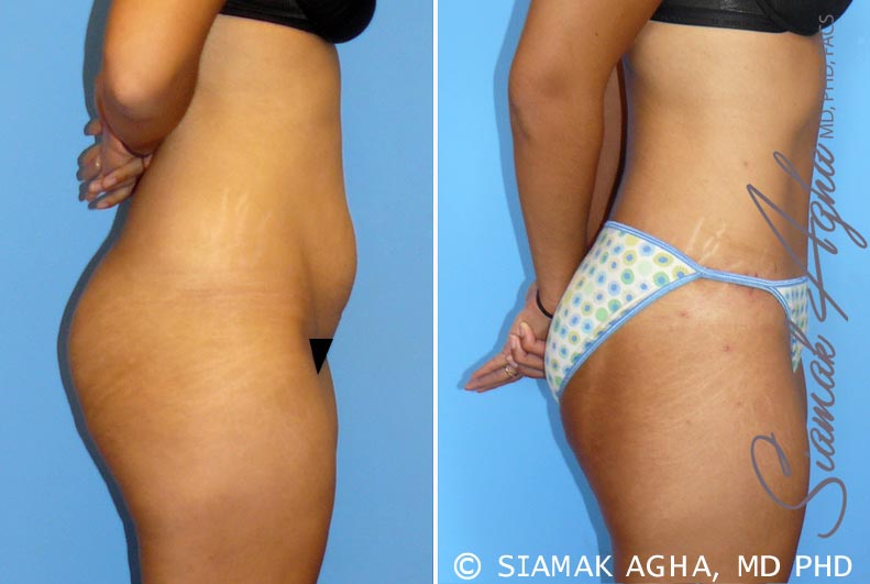 Orange County Newport Beach Tummy Tuck 11 Right View