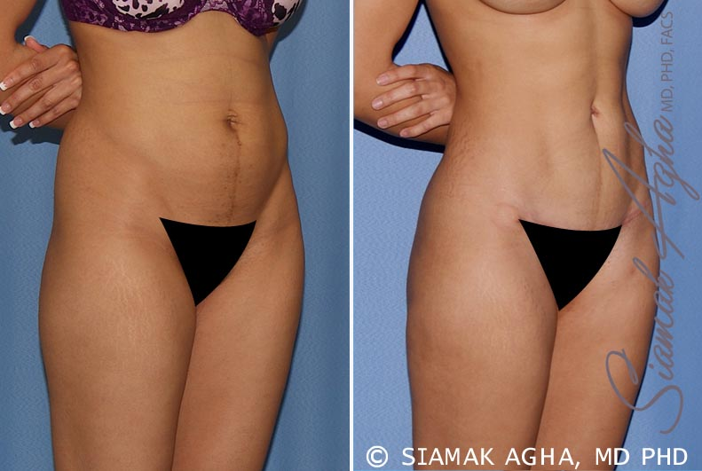 Orange County Newport Beach Tummy Tuck Patient 12