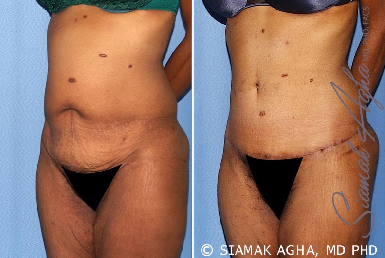 Orange County Newport Beach Tummy Tuck 13 Front Left View