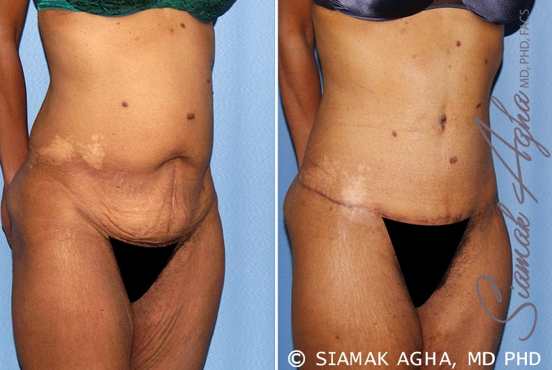 Orange County Newport Beach Tummy Tuck 13 Front Right View