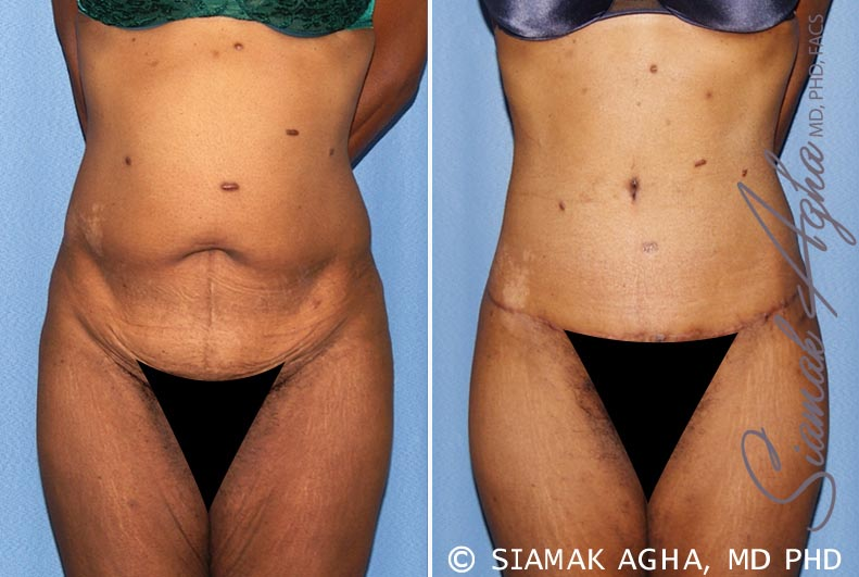 Orange County Newport Beach Tummy Tuck 13 Front View
