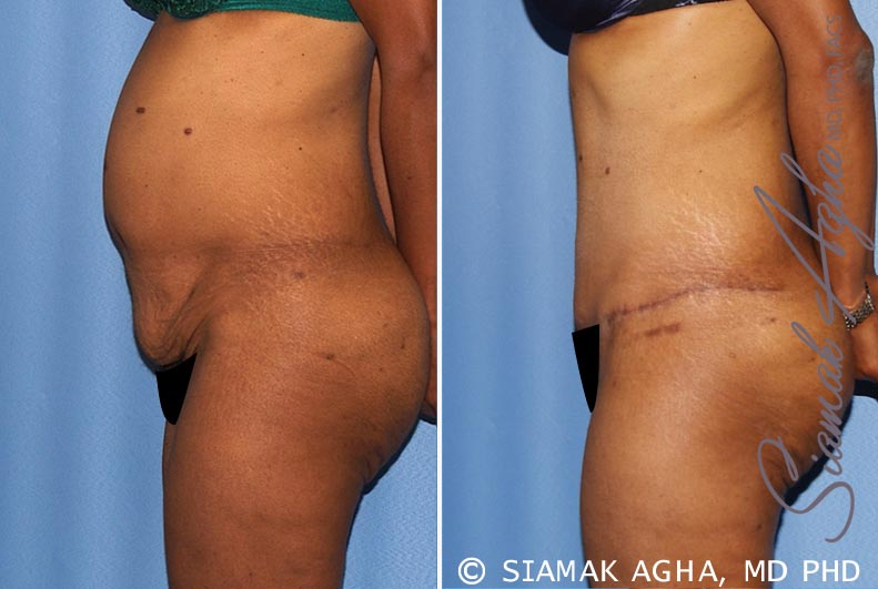 Orange County Newport Beach Tummy Tuck 13 Left View