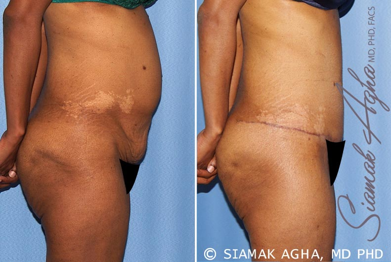 Orange County Newport Beach Tummy Tuck 13 Right View