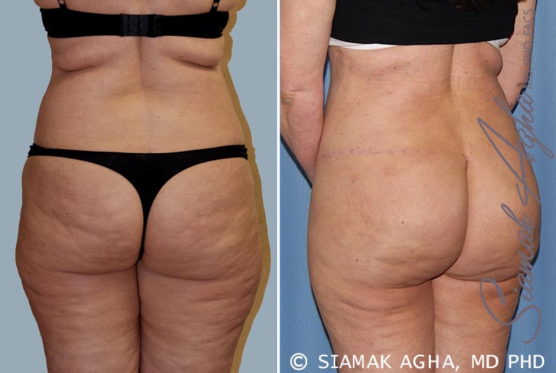 Orange County Newport Beach Tummy Tuck 14 Back Left View