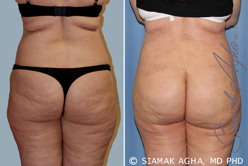 Orange County Newport Beach Tummy Tuck 14 Back View
