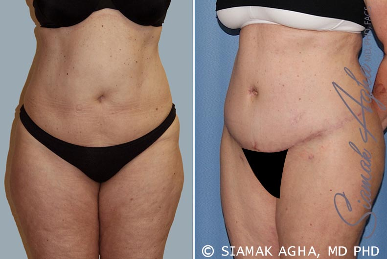 Orange County Newport Beach Tummy Tuck 14 Front Left View