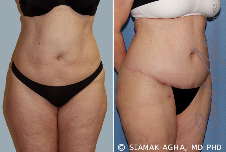 Orange County Newport Beach Tummy Tuck 14 Front Right View