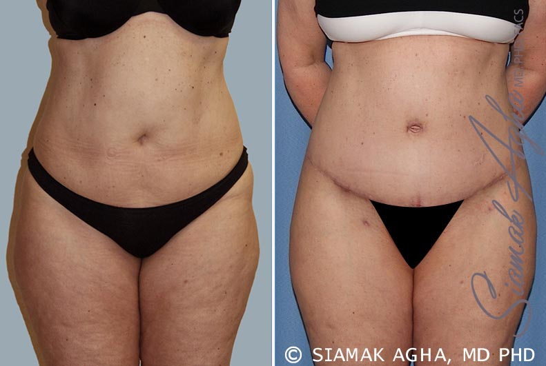 Orange County Newport Beach Tummy Tuck 14 Front View
