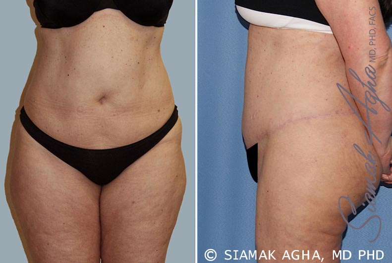 Orange County Newport Beach Tummy Tuck 14 Left View