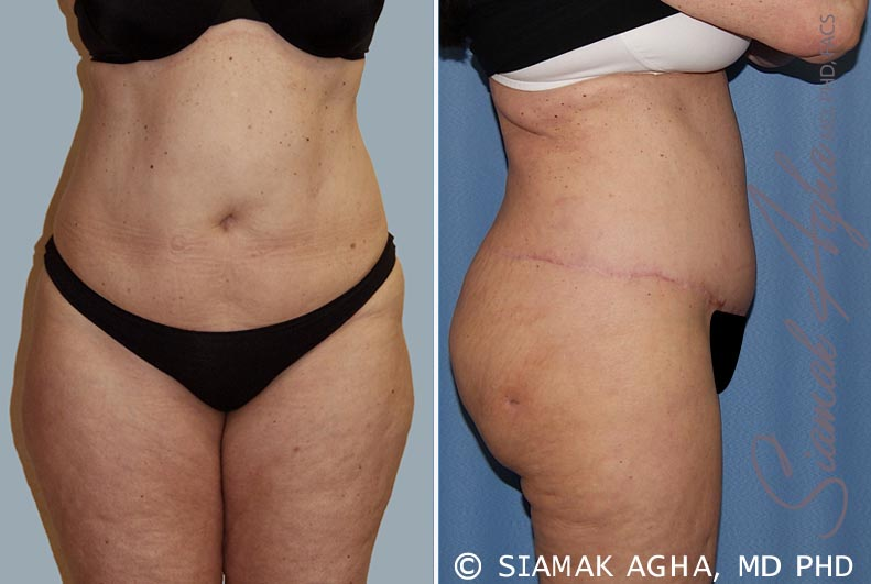 Orange County Newport Beach Tummy Tuck 14 Right View