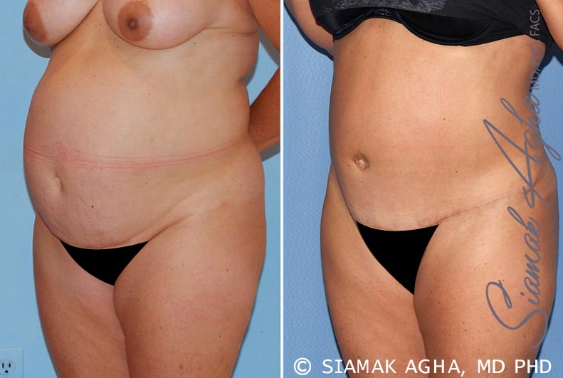 Orange County Newport Beach Tummy Tuck 15 Front Left View