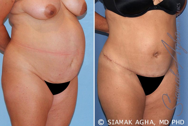 Orange County Newport Beach Tummy Tuck 15 Front Right View