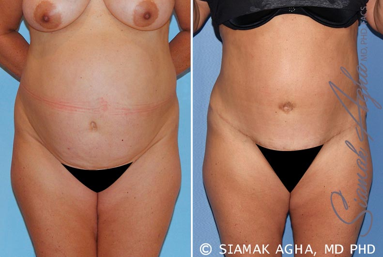 Orange County Newport Beach Tummy Tuck Patient 15