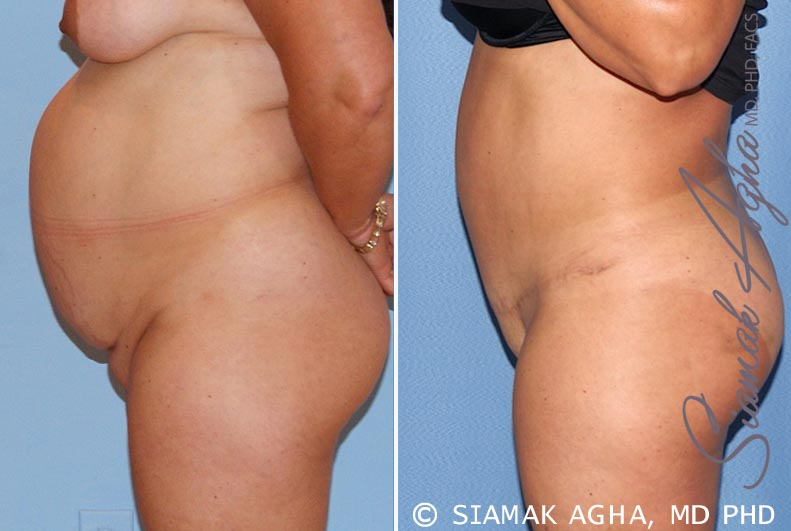 Orange County Newport Beach Tummy Tuck 15 Left View