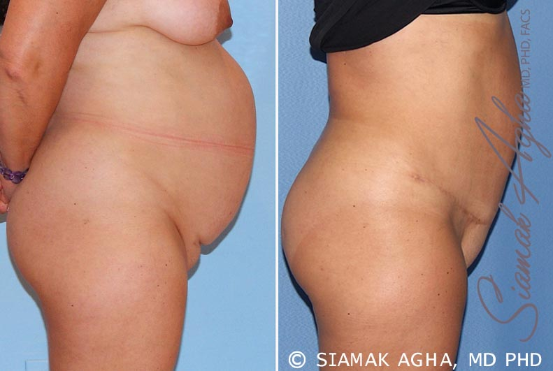 Orange County Newport Beach Tummy Tuck 15 Right View