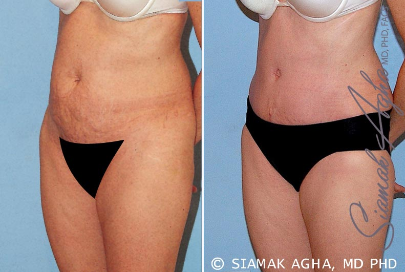 Orange County Newport Beach Tummy Tuck 16 Front Left View