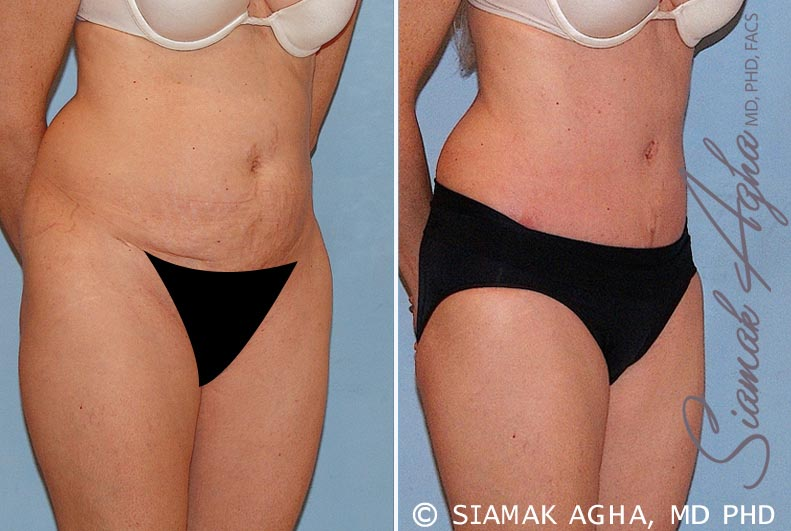 Orange County Newport Beach Tummy Tuck 16 Front Right View