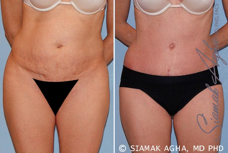Orange County Newport Beach Tummy Tuck 16 Front View