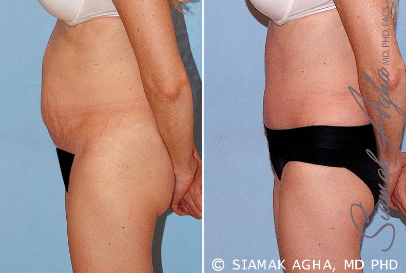 Orange County Newport Beach Tummy Tuck 16 Left View