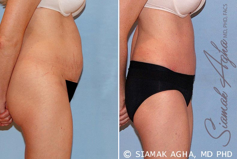 Orange County Newport Beach Tummy Tuck 16 Right View