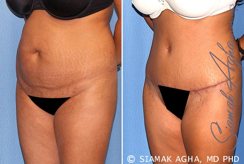 Orange County Newport Beach Tummy Tuck 17 Front Left View