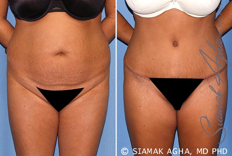 Orange County Newport Beach Tummy Tuck Patient 17