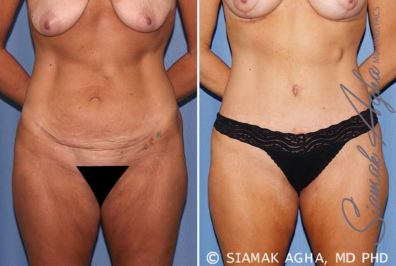 Orange County Newport Beach Tummy Tuck 18 Front Alt View