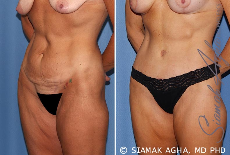 Orange County Newport Beach Tummy Tuck 18 Front Left View