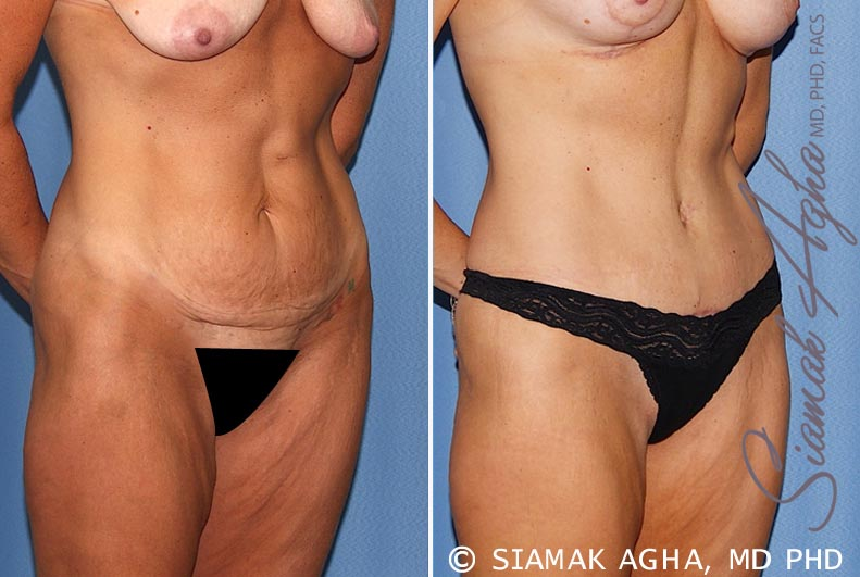 Orange County Newport Beach Tummy Tuck 18 Front Right View