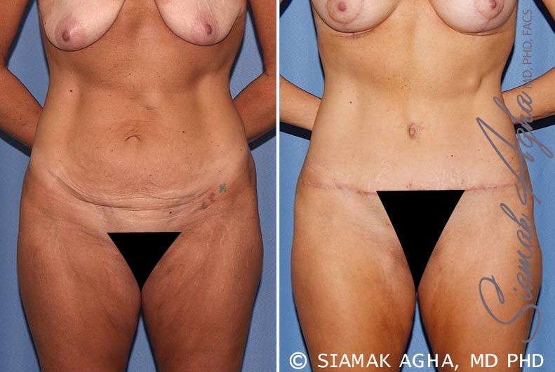 Orange County Newport Beach Tummy Tuck 18 Front View