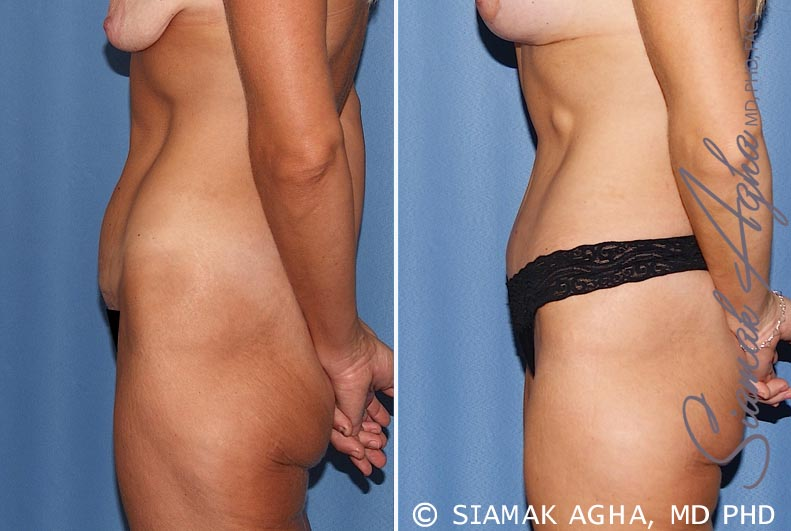 Orange County Newport Beach Tummy Tuck 18 Left View