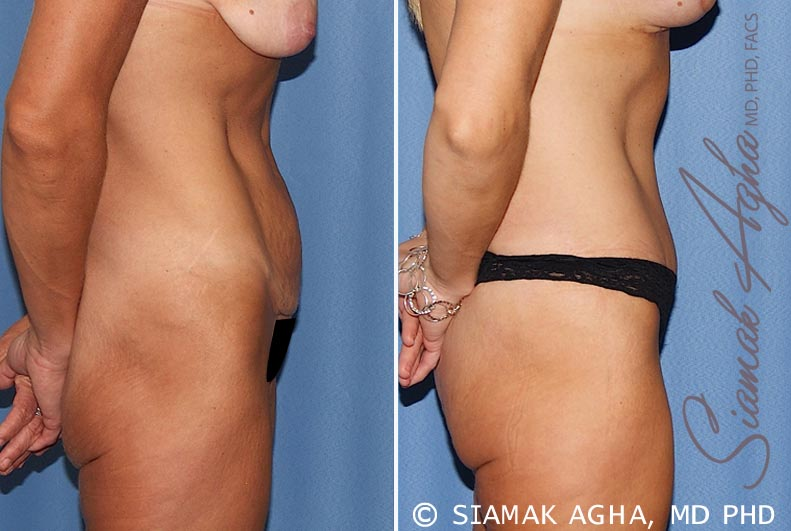 Orange County Newport Beach Tummy Tuck 18 Right View