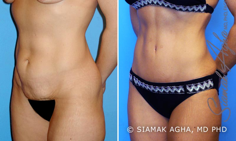 Orange County Newport Beach Tummy Tuck 2 Front Left View
