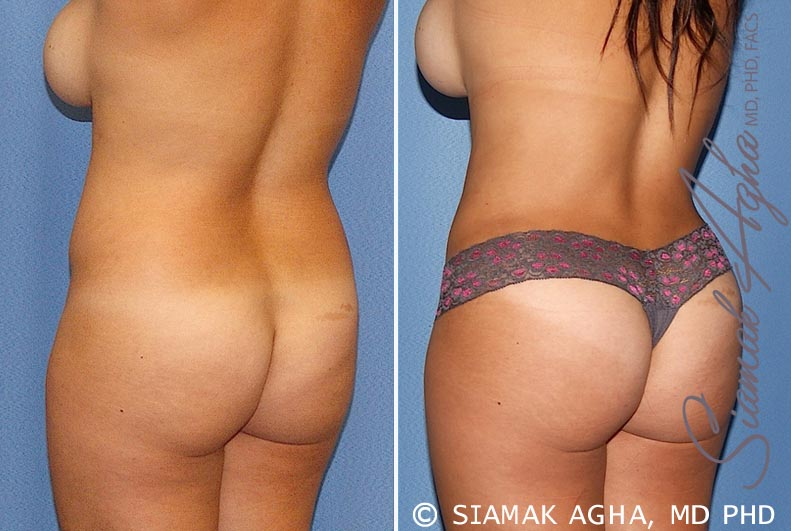 Orange County Newport Beach Tummy Tuck 20 Back Left View