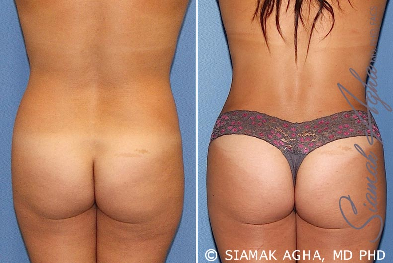 Orange County Newport Beach Tummy Tuck 20 Back View