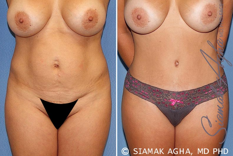 Orange County Newport Beach Tummy Tuck 20 Front Alt View