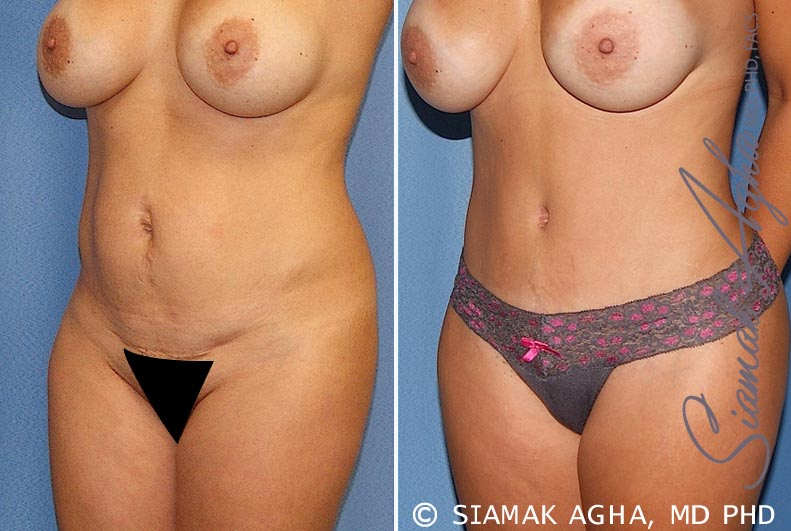 Orange County Newport Beach Tummy Tuck 20 Front Left View
