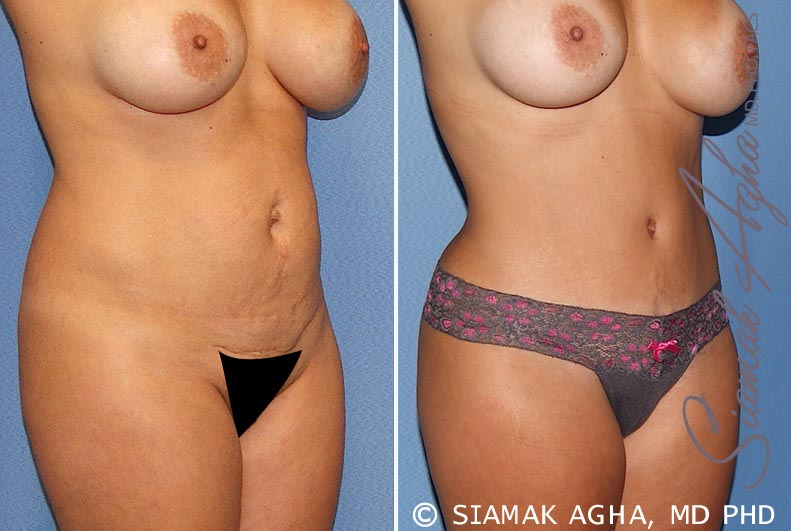 Orange County Newport Beach Tummy Tuck 20 Front Right View