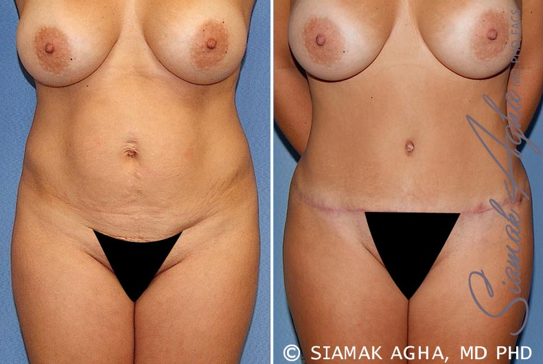 Orange County Newport Beach Tummy Tuck 20 Front View