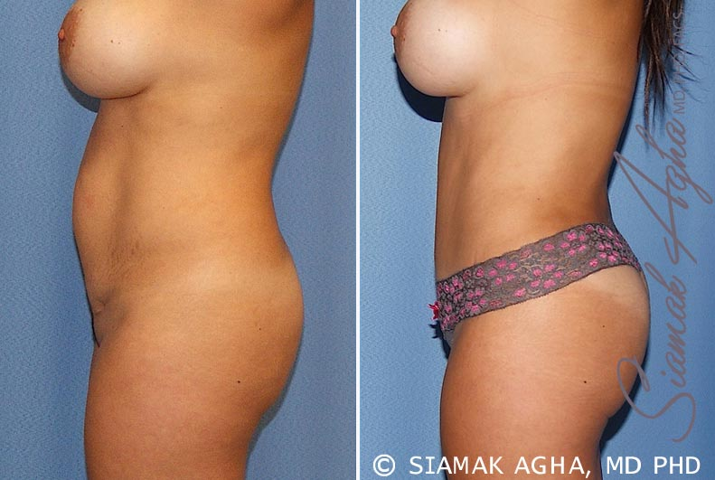 Orange County Newport Beach Tummy Tuck 20 Left View