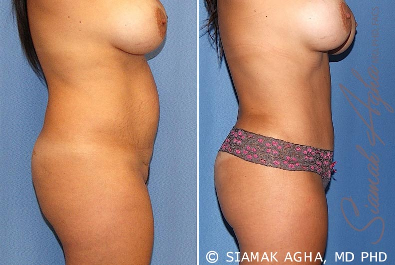 Orange County Newport Beach Tummy Tuck 20 Right View