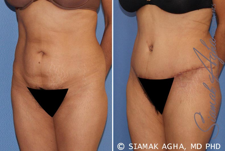 Orange County Newport Beach Tummy Tuck 21 Front Left View