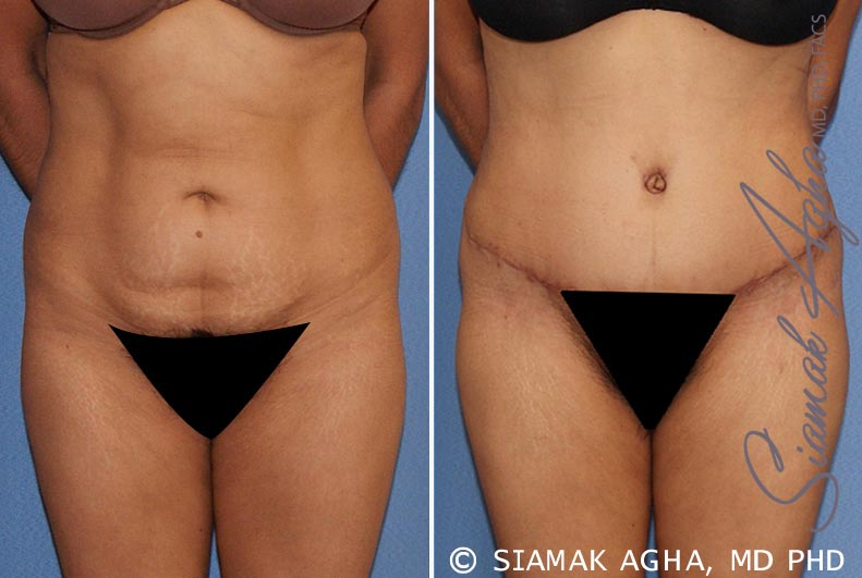 Orange County Newport Beach Tummy Tuck 21 Front View