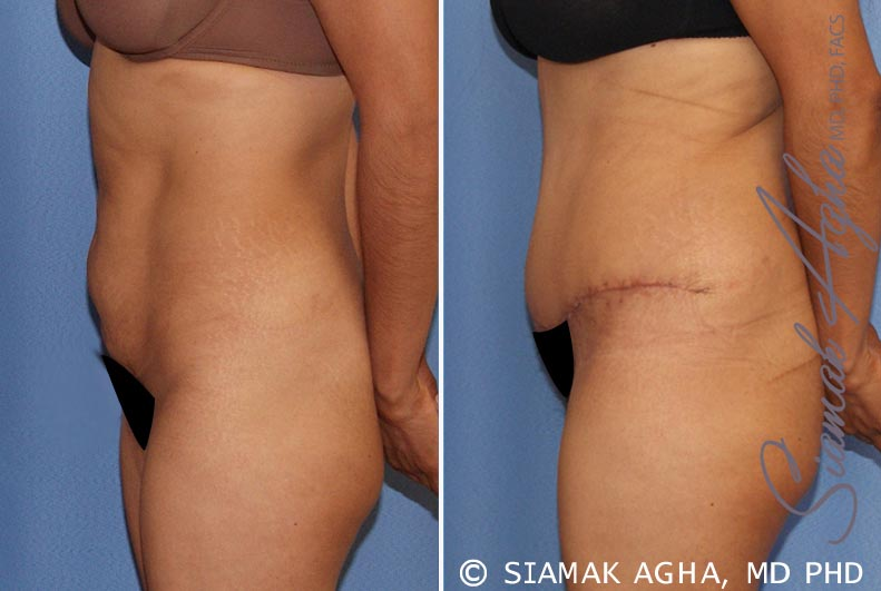 Orange County Newport Beach Tummy Tuck 21 Left View