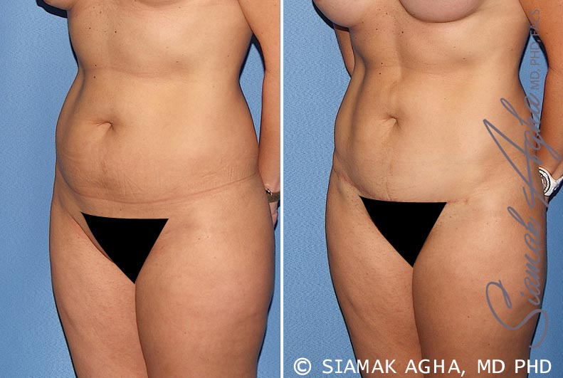 Orange County Newport Beach Tummy Tuck 22 Front Left View
