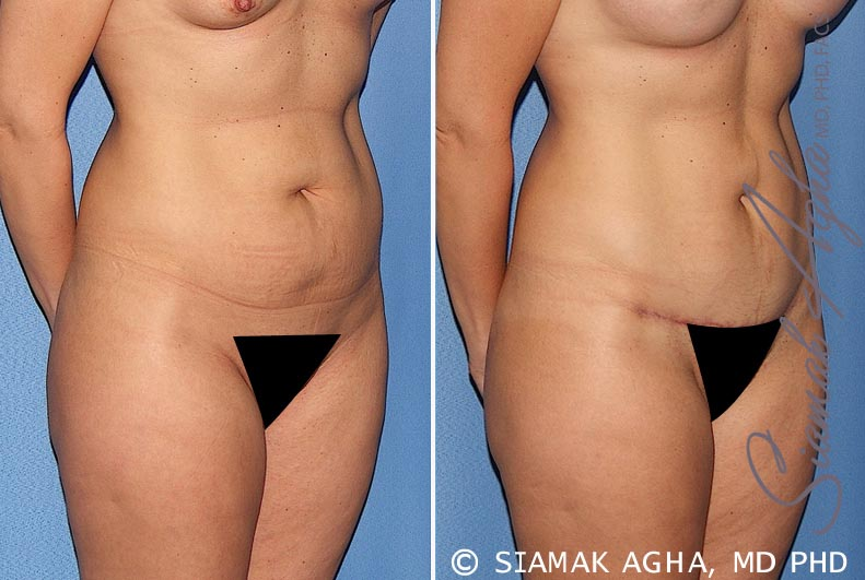 Orange County Newport Beach Tummy Tuck 22 Front Right View