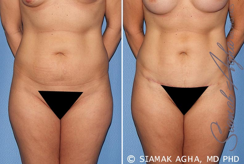 Orange County Newport Beach Tummy Tuck 22 Front View