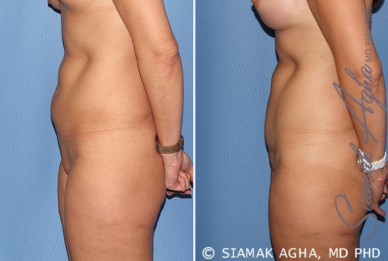 Orange County Newport Beach Tummy Tuck 22 Left View