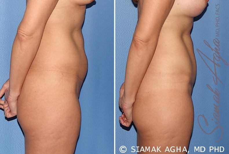Orange County Newport Beach Tummy Tuck 22 Right View